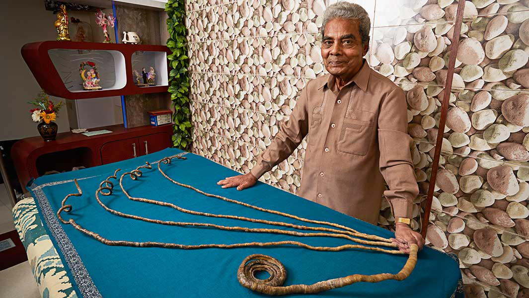 The Science Behind Tallest Man In World Longest Fingernails And Loudest Burp