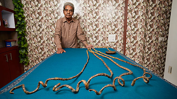 Check out the longest fingernails ever in Shridhar Chillal's Record Holder Profile Video