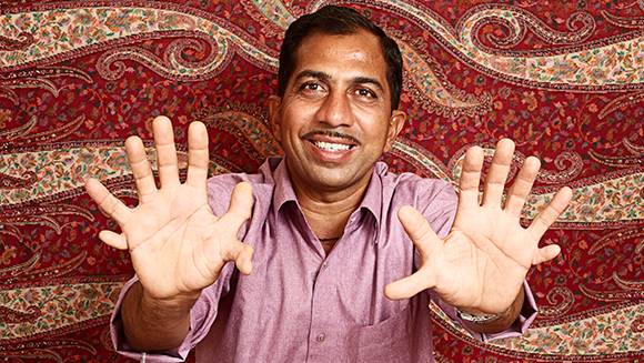 Record Holder Profile Video: Devendra Suthar - the man with the most fingers and toes