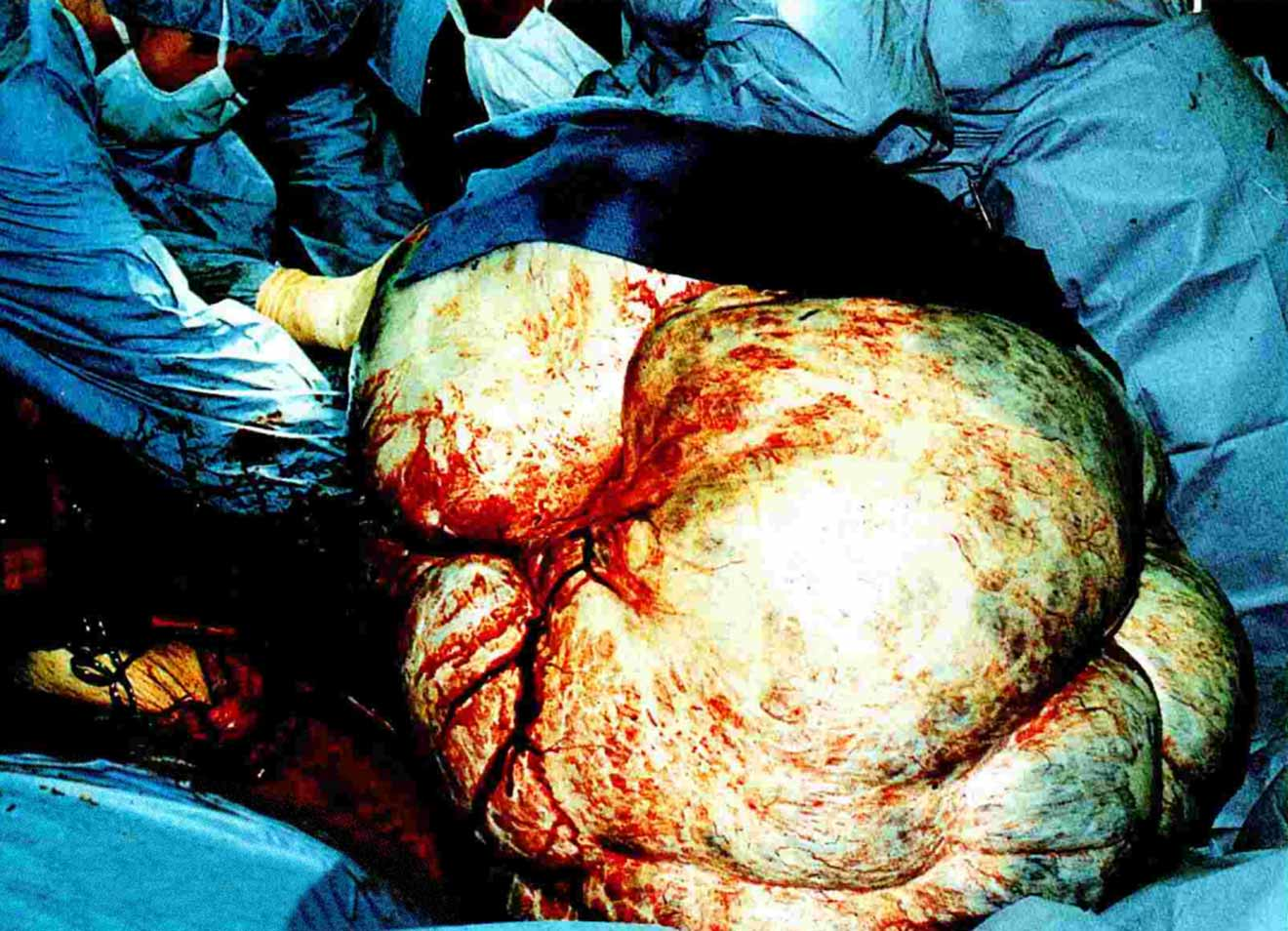 Largest tumour - removed intact